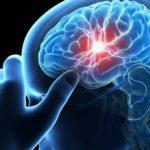 Δ. Μακεδονία: Σε ιδιοπαθή σπογγώδη εγκεφαλοπάθεια το περιστατικό σε άνθρωπο